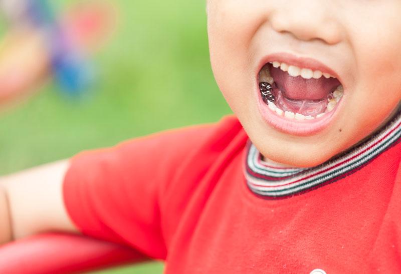 Dental Emergency for Kids